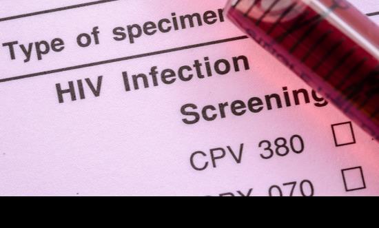 Labor científica por las mujeres diagnosticadas con VIH entre Puerto Rico y Hawaii