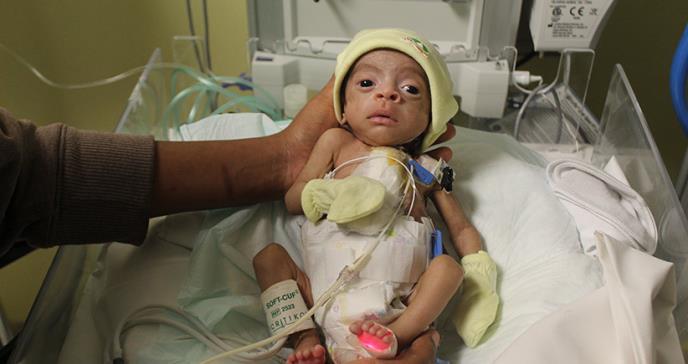 Realizan cirugía cardíaca a bebé prematuro de 1500 gramos por primera vez en República Dominicana