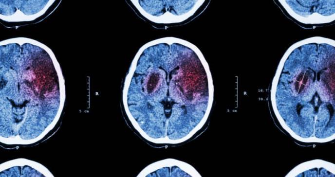 Inician el ensayo de un fármaco para la recuperación neuronal después de una lesión cerebral