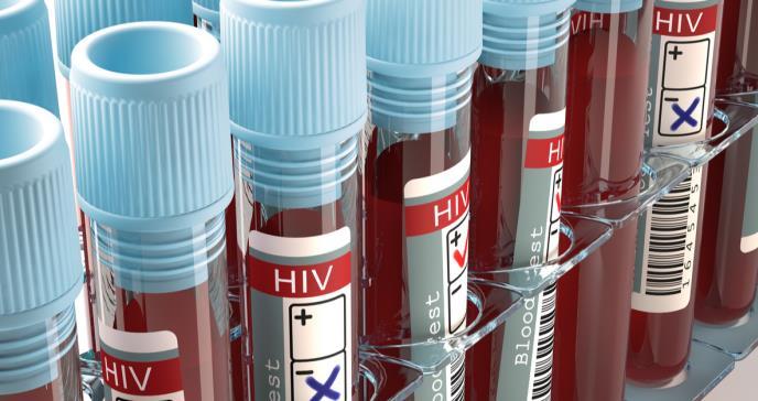 Los NIH invierten 14,6 millones de dólares en investigación que busca la cura del VIH