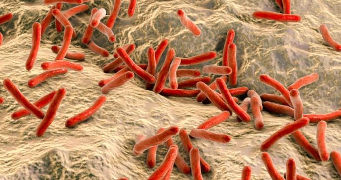 Investigadores de Mayo Clinic revisan casos modernos de lepra