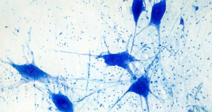 Investigan el papel de las células gliales en el alzheimer