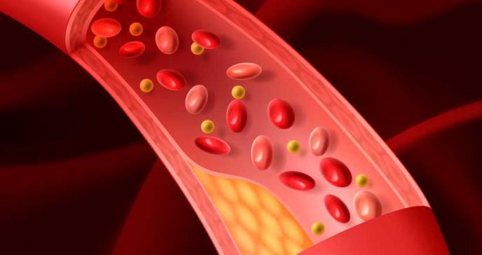 La disfunción endotelial estaría vinculada al riesgo de cáncer