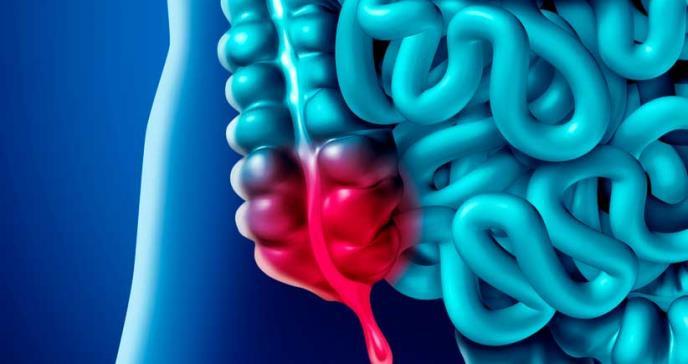 La extirpación del apéndice podría proteger contra el párkinson