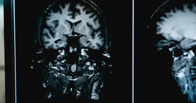 La deficiencia de ácido fólico podría estar relacionada con el alzhéimer