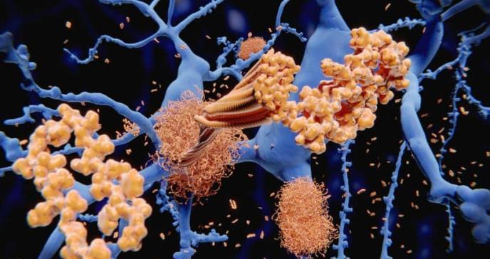 La falta de sueño aumenta la proteína de alzhéimer