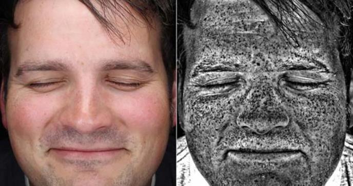 La imagen que muestra cómo daña el sol la piel aunque no se vea