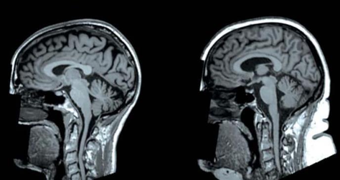La obesidad nos transforma la forma del cerebro