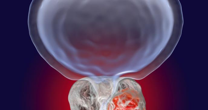 La última generación de antiandrógenos rescata a los pacientes con cáncer de próstata con metástasis