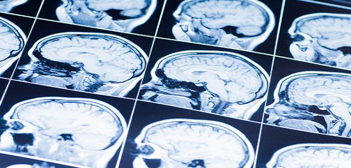 Lesiones cerebrales traumáticas, un reto para los países en desarrollo