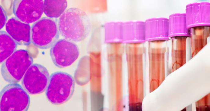 FDA aprueba Venclexta®  para leucemia mieloide aguda