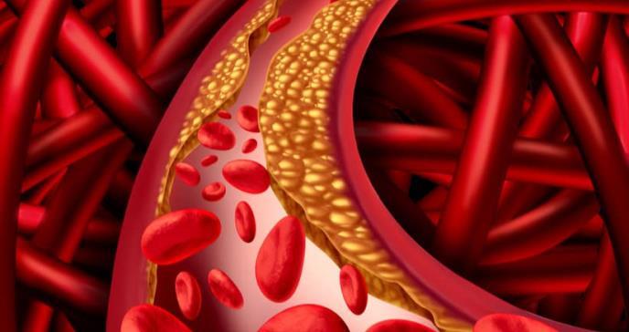 Los alimentos ultraprocesados elevan el riesgo de enfermedad cardiovascular y muerte