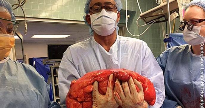 Extirpan tumor de 70 libras que invadió el abdomen de paciente