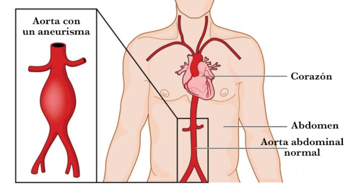 Los pacientes con aneurisma aórtico abdominal ven reducida la función cardioprotectora del colesterol HDL