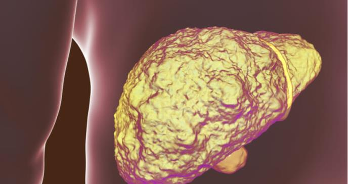 Los pacientes con cirrosis propensos a más complicaciones tras prueba invasiva