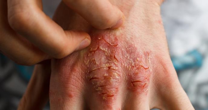 Los pacientes con psoriasis tienen un mayor riesgo de enfermedad inflamatoria intestinal