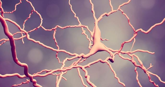 Los perfiles clínicos en Huntington, asociados a dos firmas neurales