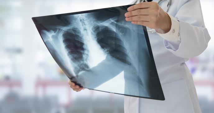 Alta mortalidad entre enfermedades crónicas respiratorias, según neumólogos
