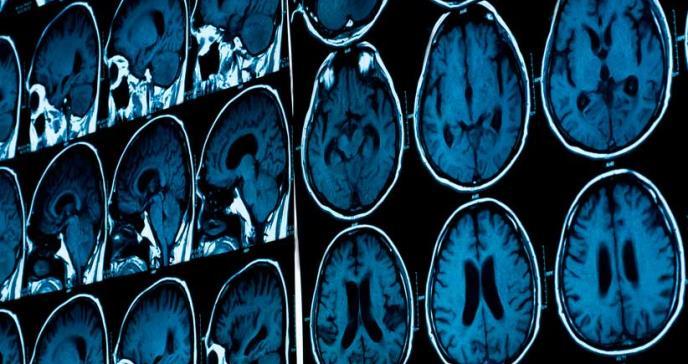 Luz parpadeante podría incitar al cerebro a defenderse del alzhéimer, según estudio