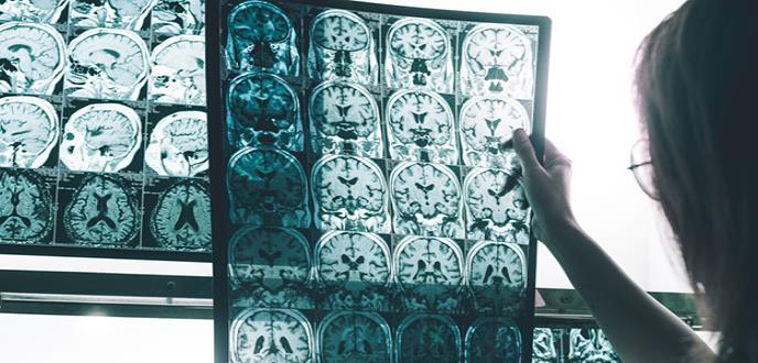 Qué es la mutación Jalisco y su relación con el Alzheimer