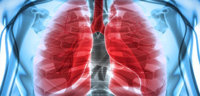 Una terapia genética induce la regresión de cánceres de pulmón