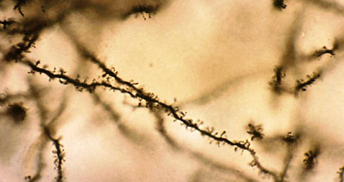 La marihuana y su afectación a la plasticidad neuronal