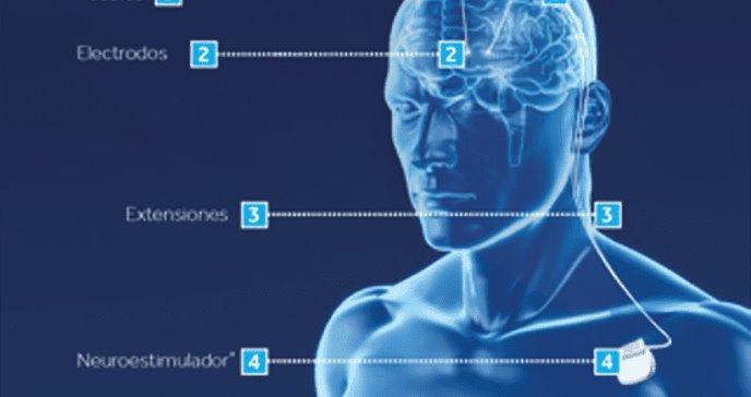 Más del 85% de los pacientes con Parkinson mejoran sus síntomas gracias a la Estimulación Cerebral Profunda
