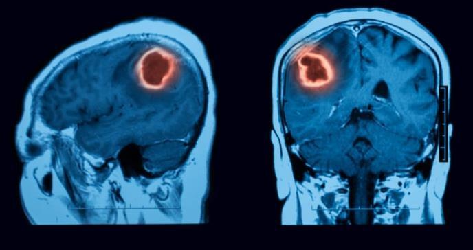 Nanopartículas para llevar fármacos al interior del tumor cerebral más letal