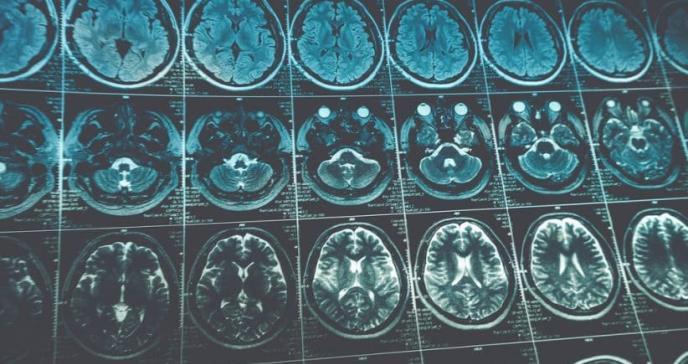 Mejoran la administración de fármacos en cáncer cerebral