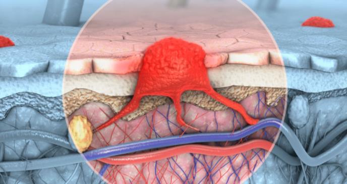 Factores implicados en el desarrollo del melanoma maligno