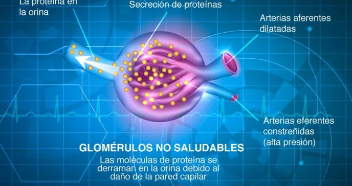 Neuropatía diabética: tipos, síntomas y prevención