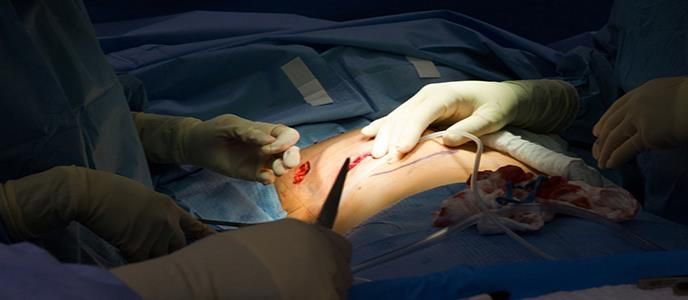 Cómo decidir sobre la reconstrucción de pecho tras un cáncer