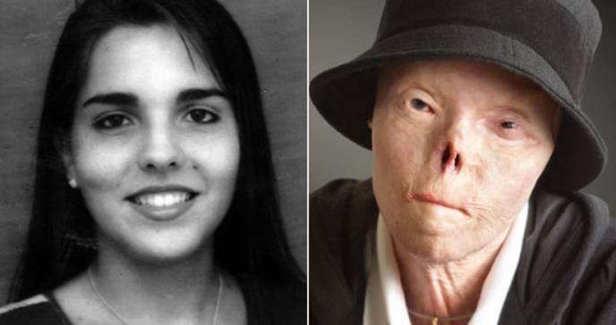 Muere la mujer que se convirtió en el rostro de la campaña de no conducir en embriaguez