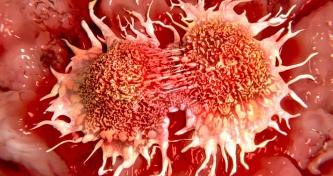 Nanomedicina eficaz contra tumores de mama agresivos