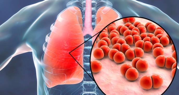 Prevención de la enfermedad neumocócica invasiva en pacientes inmunocompetentes