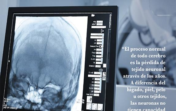 Neuroimagen en Enfermedades Neurodegenerativas