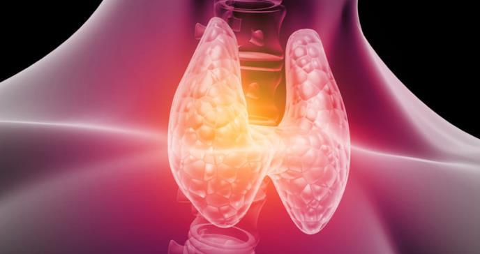 Malignidad presente en el 5% de los pacientes con nódulo tiroideo