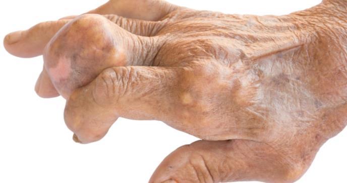 Nuevas pistas sobre el daño tisular identificado en la artritis reumatoide y el lupus