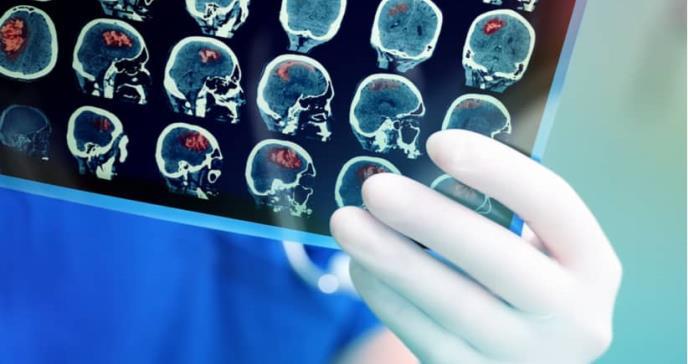 Crean una nueva terapia que podría eliminar el cáncer cerebral