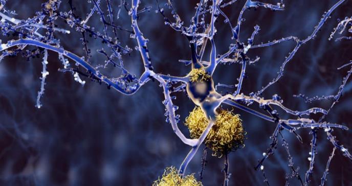 Nuevo biomarcador en sangre permite diagnosticar alzhéimer en estadios tempranos