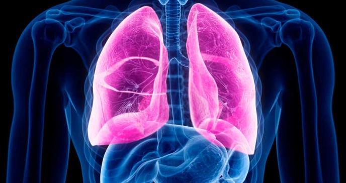 Nuevo enfoque para tratar la fibrosis quística reduciría el riesgo de trasplantes de pulmón