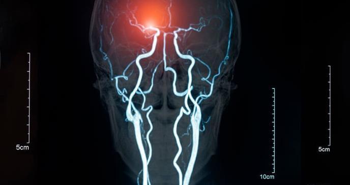 Interior paraliza un experimento de estimulación eléctrica cerebral con presos violentos