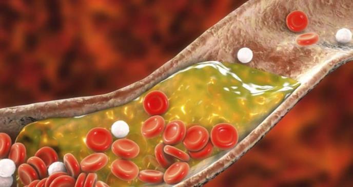 Un nuevo probiótico con una elevada capacidad de reducción del colesterol