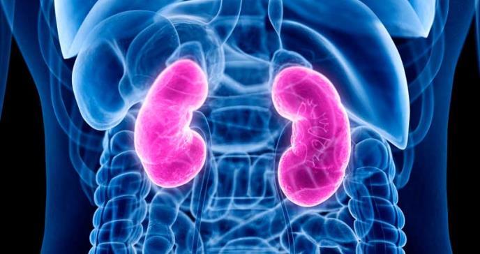 Nuevo tratamiento facilitaría el paso de cálculos renales