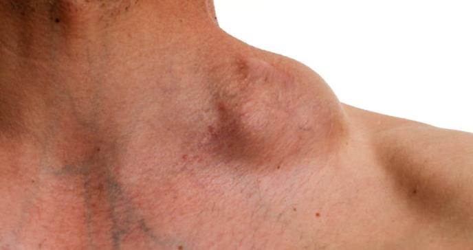Aprueban nuevo tratamiento para dos tipos raros de linfoma no Hodgkin