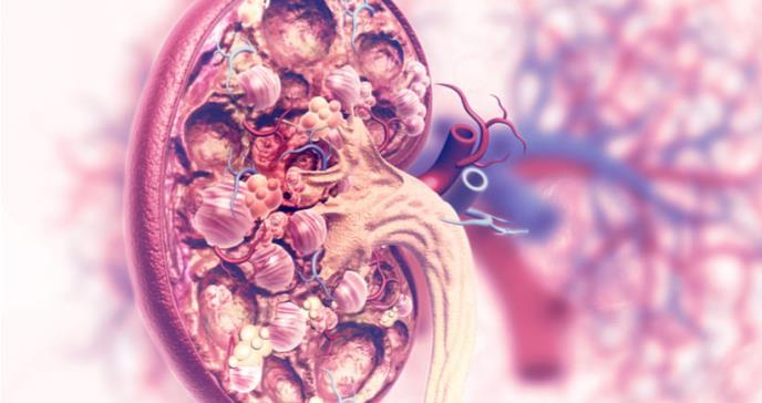 Obesidad, factor desencadenante de cáncer en jóvenes