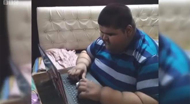 Cómo perdió un tercio de su peso el adolescente más obeso del mundo