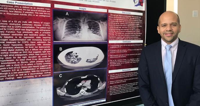 Paciente de artritis presenta síntomas en pulmón y no en las articulaciones