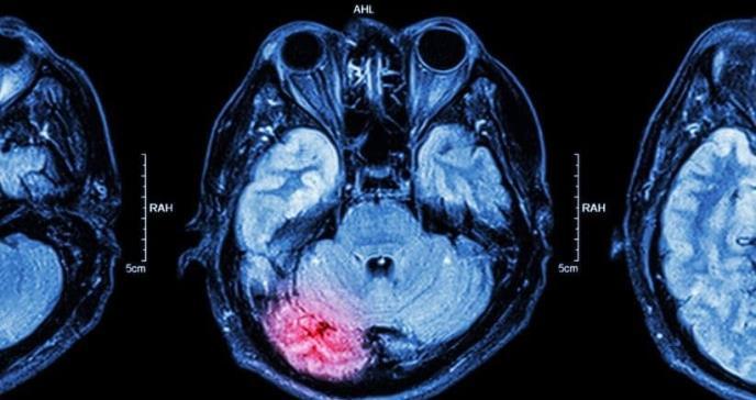 Paciente llega a sala de emergencia con síntomas inusuales de enfermedad neurológica