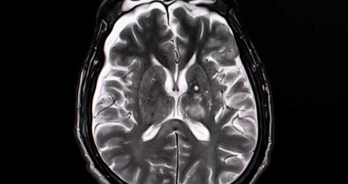Pequeñas hemorragias están asociadas con discapacidad después de una lesión cerebral
